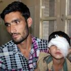 CRPF sorry for pellet injuries in Kashmir
