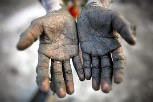 ota Miya, 10, shows his hands after preparing soil to make bricks in a brick field on the outskirts of Dhaka.