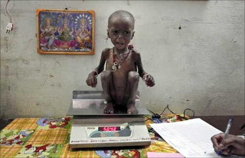 Severely malnourished two-year-old girl Rajni is weighed by health workers at the Nutritional Rehabilitation Centre of Shivpuri district in Madhya Pradesh.