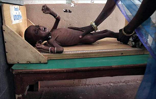 Health workers measure the height of severely malnourished two-year-old girl Rajni at the Nutritional Rehabilitation Centre of Shivpuri district in Madhya Pradesh.