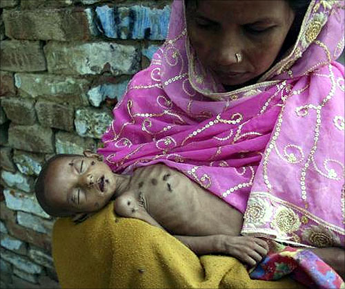 Naushad, 18-months-old and suffering from severe malnutrition, lies on his mother's lap inside their residence in Kalonda village near Sikandrabad district in Uttar Pradesh.