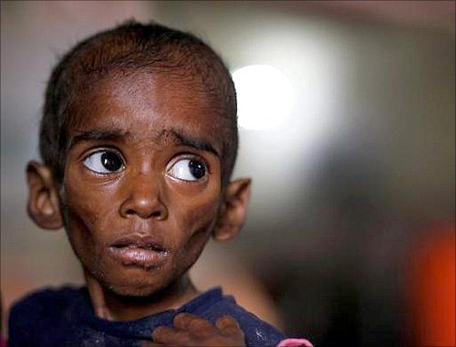 Ranbir, twenty-six-months, who weighs 5 kg and suffers from severe malnutrition, waits for food at the Nutritional Rehabilitation Centre of Shivpuri district in Madhya Pradesh.