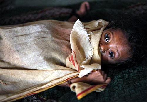 Six-month-old Kiran, who weighs 3.5 kg and suffers from severe malnutrition, lies in bed at the Nutritional Rehabilitation Centre in Talbahet town in Uttar Pradesh.