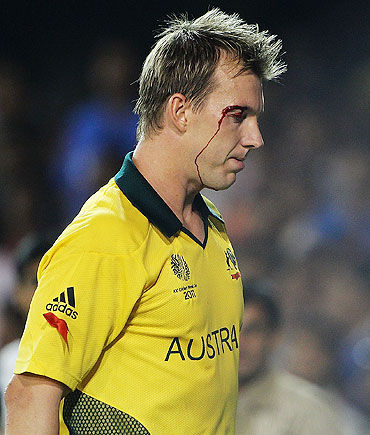 Brett Lee goes off the field, after injuring his eye while fielding on the boundary line
