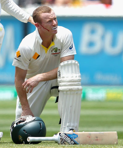 Chris Rogers of Australia recovers after he was struck in the head by a delivery from Stuart Broad of England
