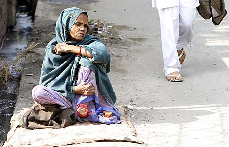 A woman suffering from leprosy waits for alms on a roadside on the occasion of anti-leprosy day