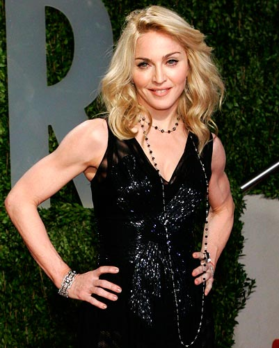 It's alleged that Madonna gets Botox done regularly -- if you're following in her footsteps, be prepared for a little bruising