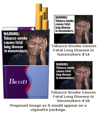 Tobacco smoke causes fatal lung disease in non-smokers