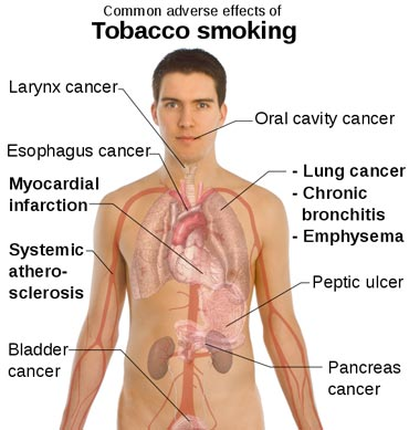 smoking effects on people. Giving up smoking is one of