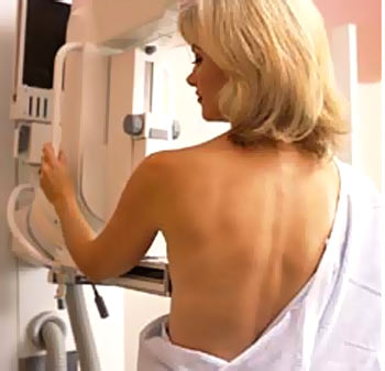 Top 15 myths about breast cancer