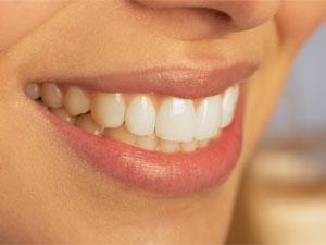 7. Teeth grinding