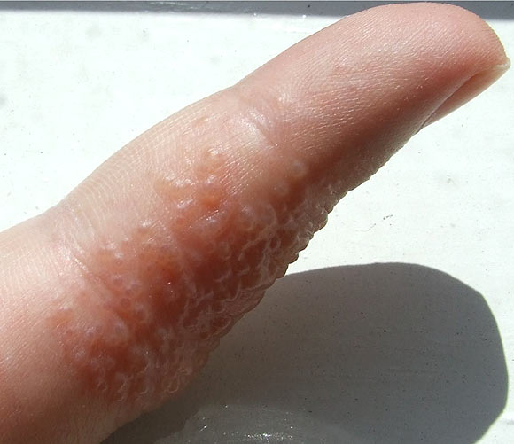 Eczema is an itchy skin rash