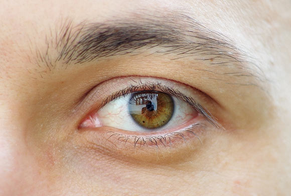 Allergic reactions involving the eyes are a common complaint