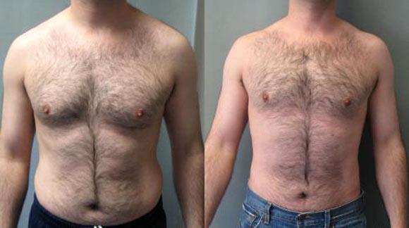 an analysis of the topic of gynecomastia definition Gynecomastia (guy-nuh-koh-mas-tee-uh) is swelling of the breast tissue in boys or men, caused by an imbalance of the hormones estrogen and testosterone generally, gynecomastia isn't a serious problem, but it can be tough to cope with the condition men and boys with gynecomastia sometimes.