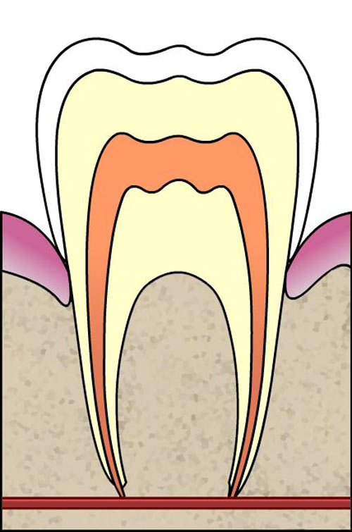 Intrinsic causes of tooth discolouration