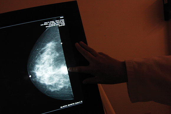 A monitor shows the image of a breast cancer at a centre run by the Reto Group for Full Recovery of Breast Cancer in Mexico City October 18, 2012. Breast cancer has been the leading cause of death in Mexican women since 2006, according to the group. The World Day Against Breast Cancer is commemorated on October 19.