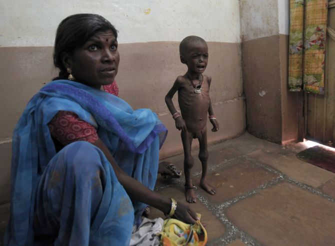 Severely malnourished two-year-old girl Rajni waits with her mother at the Nutritional Rehabilitation Centre of Shivpuri district.