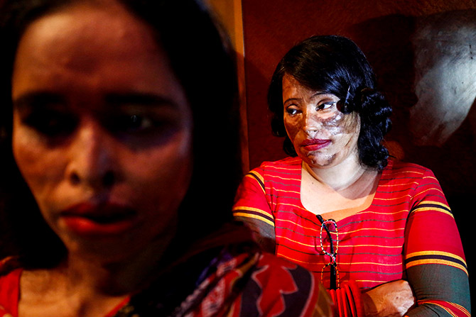 Acid attack show in Bangladesh