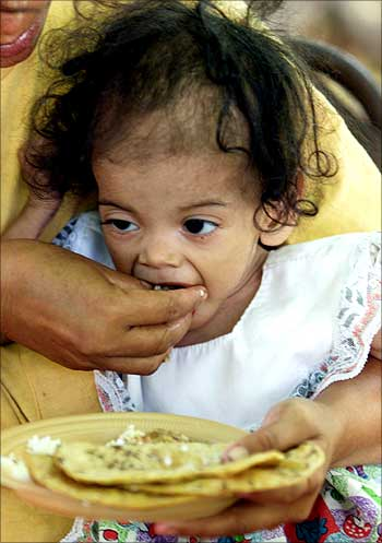 18-month-old Honduran Yamileth Funez suffers from malnutrition.