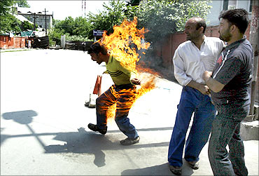 Bashir Ahmad Mir, unemployed Kashmiri doctor, tried self immolation to demand for jobs in Srinagar.