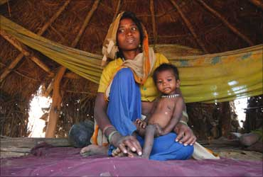 21-month-old Sushila, who weighs 4.5 kg and suffers from severe malnutrition, sits in her mother's lap.