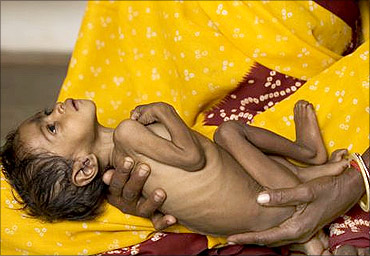 A malnourished baby in India.