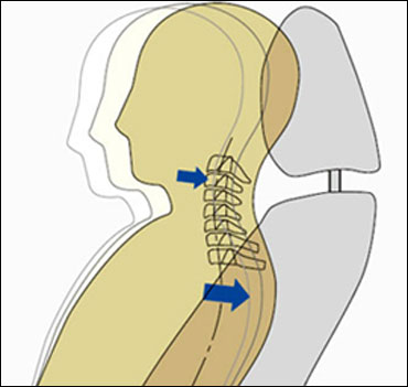 Whiplash injury lessening concept.