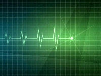 Cardiac graph