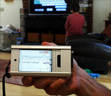 Ed Damiano holds up the prototype for the portable monitor for a bionic pancreas at the family's home in Acton, Massachusetts.
