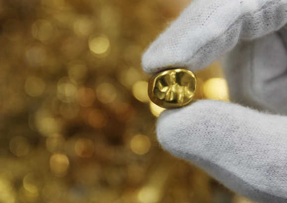 An employee displays a gold tooth at a shop that purchases gold in the Ginza district of Tokyo.