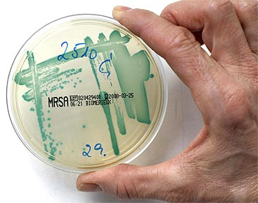 The MRSA (Methicillin Resistant Staphylococcus Aureus) bacteria strain as seen in a petri dish