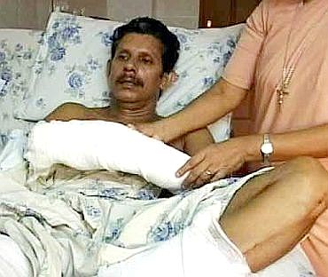 Professor T J Joseph in hospital after the brutal attack