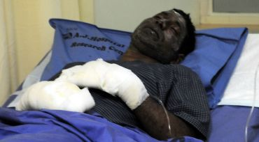 Omar Farook recovers at the A J Hospital and Research Centre on Saturday