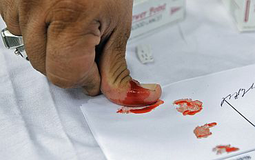 Supporters of Anna Hazare sign a thumb-impression with blood to show solidatity with his cause