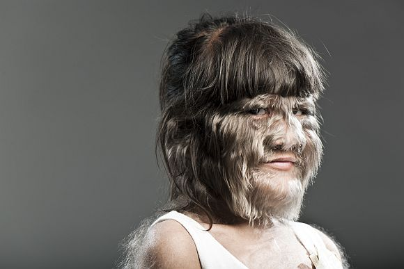 World's Hairiest Girl: Supatra Sasuphan