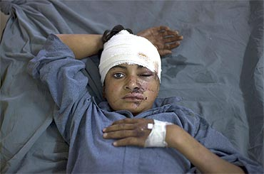 A Pakistani boy injured in a suicide bomb attack at a mosque awaits treatment at a hospital in Peshawar