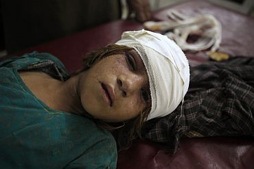 A girl injured by a suicide bomb blast in Pakistan's northwestern Mohmand region lays awaiting treatment at a hospital in Peshawar