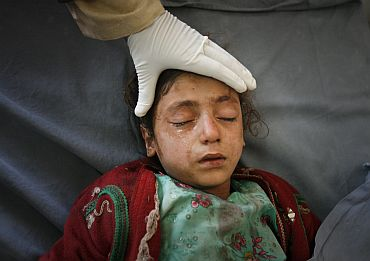 A girl is treated by medics at a hospital after suffering injuries from a bomb attack in Peshawar on February 2, which killed nine people