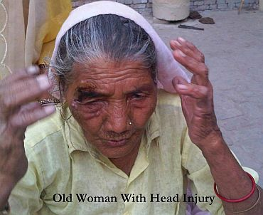 An old woman shows her wound inflicted during the police lathi charge