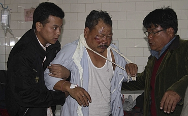Relatives of a man who was injured after a bridge collapsed at Bijonbari village, is helped inside a hospital in Darjeeling