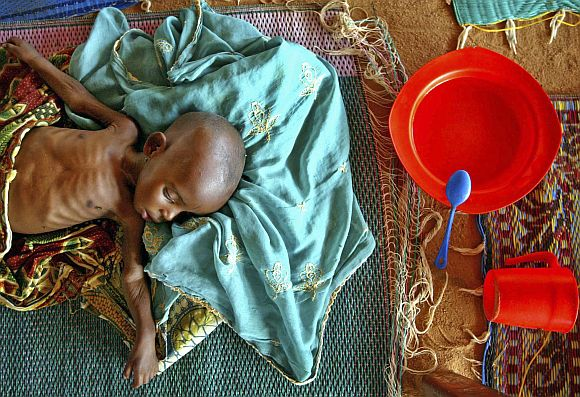 A malnourished infant lies on the floor in a therapeutic feeding center run by the medical charity Medecins Sans Frontiers (MSF) in the town of Maradi in southern Niger