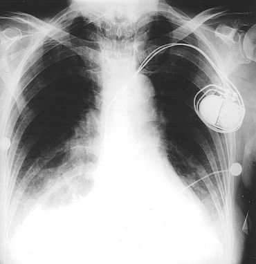 Pacemaker inventor Wilson Greatbatch dead