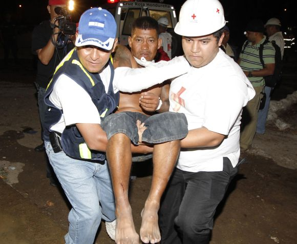 A man injured in the fire is carried by medical personnel in Comayagua