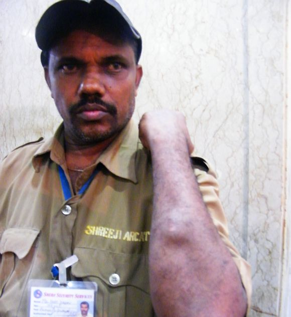 Security guard Hari Yadav suffered injuries on his hand, legs, eyes and back.