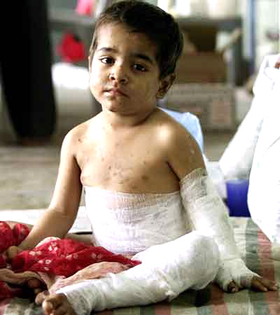 A child injured in the 2002 riots sits inside an Ahmedabad mosque after his father took shelter there.
