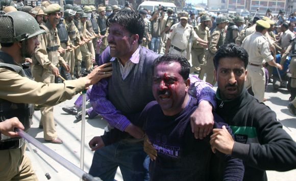 An injured protestor is seen in Srinagar during the second day of the strike by the J&K government employees