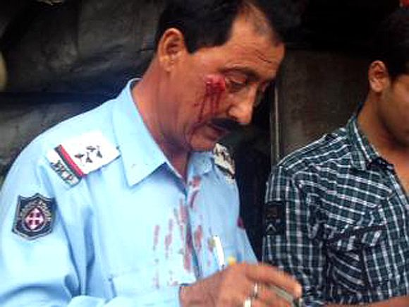 Sub-Inspector Mohan Lal after being thrashed by the guards of minister on Monday