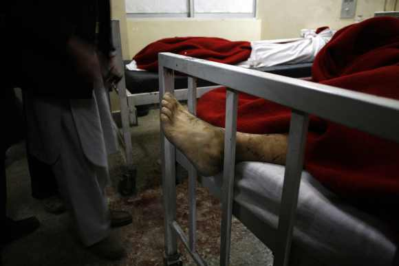 A foot is seen under a blanket at a hospital after the bomb attack in Quetta
