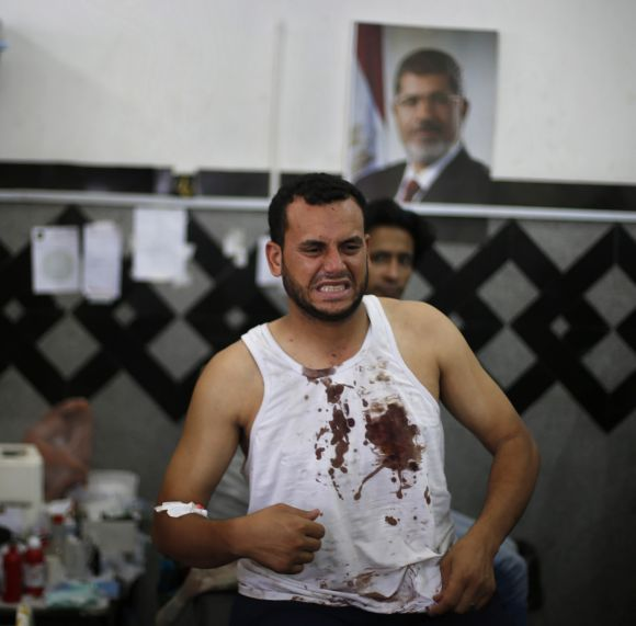 A wounded Morsi supporter reacts at a local hospital in Cairo