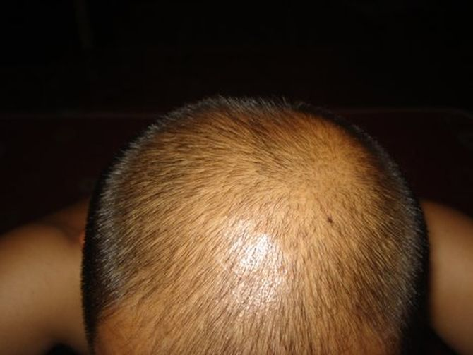 The 'pull' behind male hair loss
